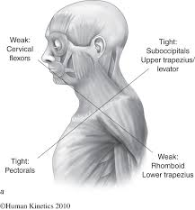 upper-crossed-syndrome